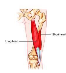 Anatomia da Cabeça Curta do Bíceps Femoral